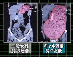 ギャル曽根の胃